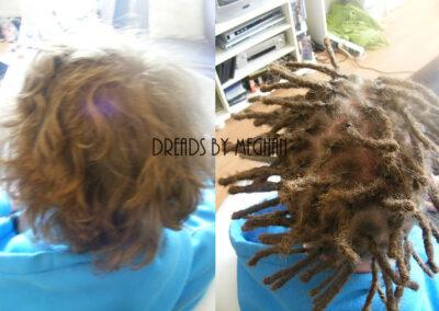 dreads zetten in dun haar - dreads zetten weinig haar - een paar dreads zetten - weinig dreads - dun haar dreadlocks - Lock Solid Dreadlocks Rotterdam (12)