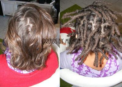 dreads zetten in dun haar - dreads zetten weinig haar - een paar dreads zetten - weinig dreads - dun haar dreadlocks - Lock Solid Dreadlocks Rotterdam (25)